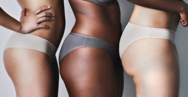 Appearance of Cellulite