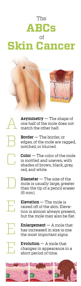 Skin Cancers Carcinoma Melanoma Health Journal