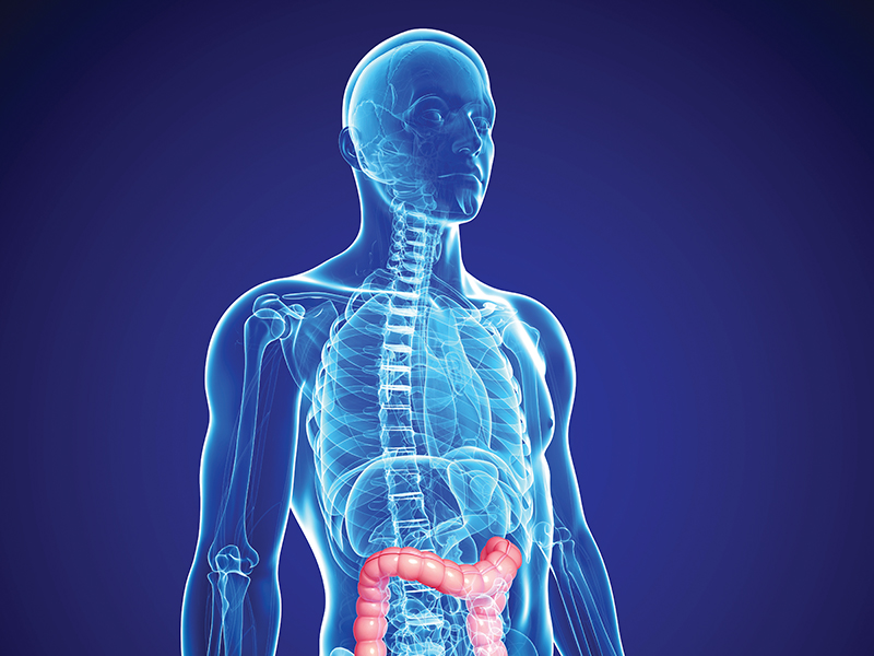 Cologuard Makes Screening For Colon Cancer Easier Health Journal