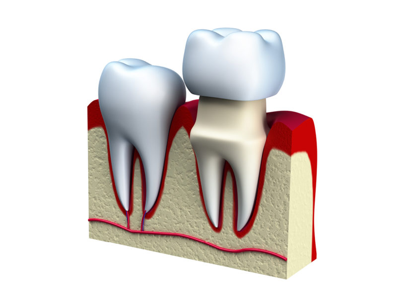 Do I really need a dental crown?