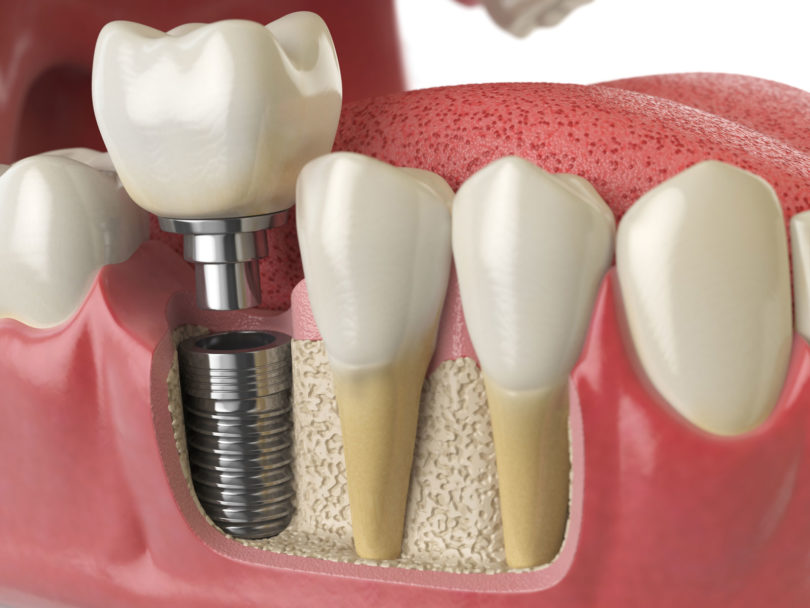 teeth supported by implants