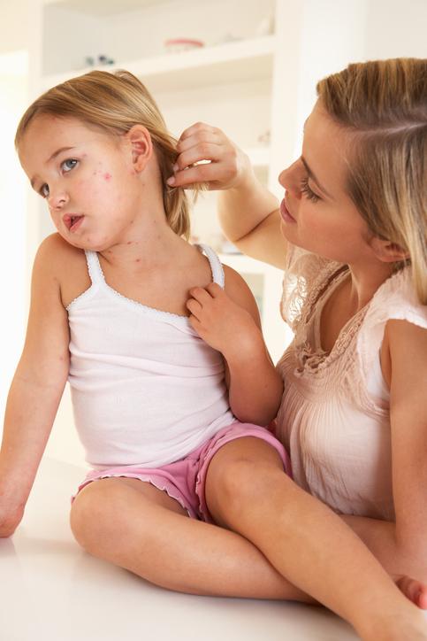 Rashes in children