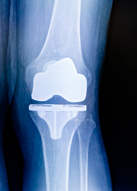 total knee replacement as outpatient